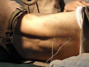 Fondo acupuntura